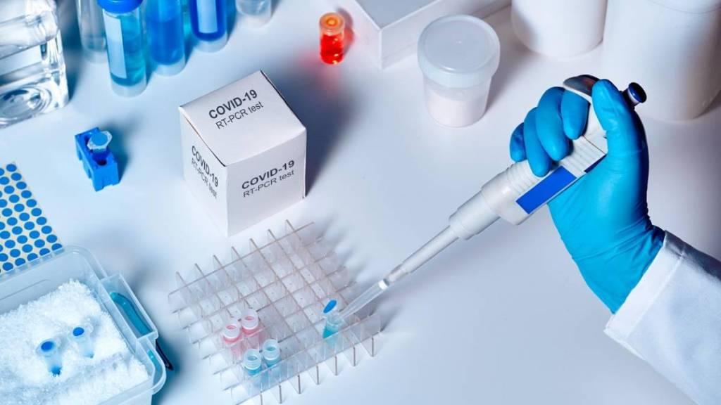 testes pcr rt coronavc3adrus - Japão revisa critérios sobre sintomas para teste de vírus